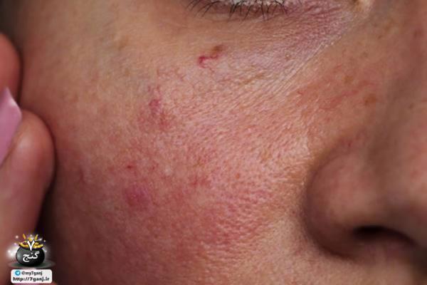 آموزش 9 ماسک طبیعی برای برطرف قرمزی پوست